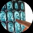 anaheim brain injury lawyer